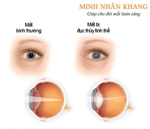 Triệu chứng đục thủy tinh thể ở mắt